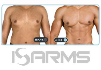 sarms-strength gain