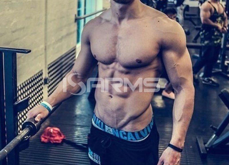 hcg-in-bodybuilding
